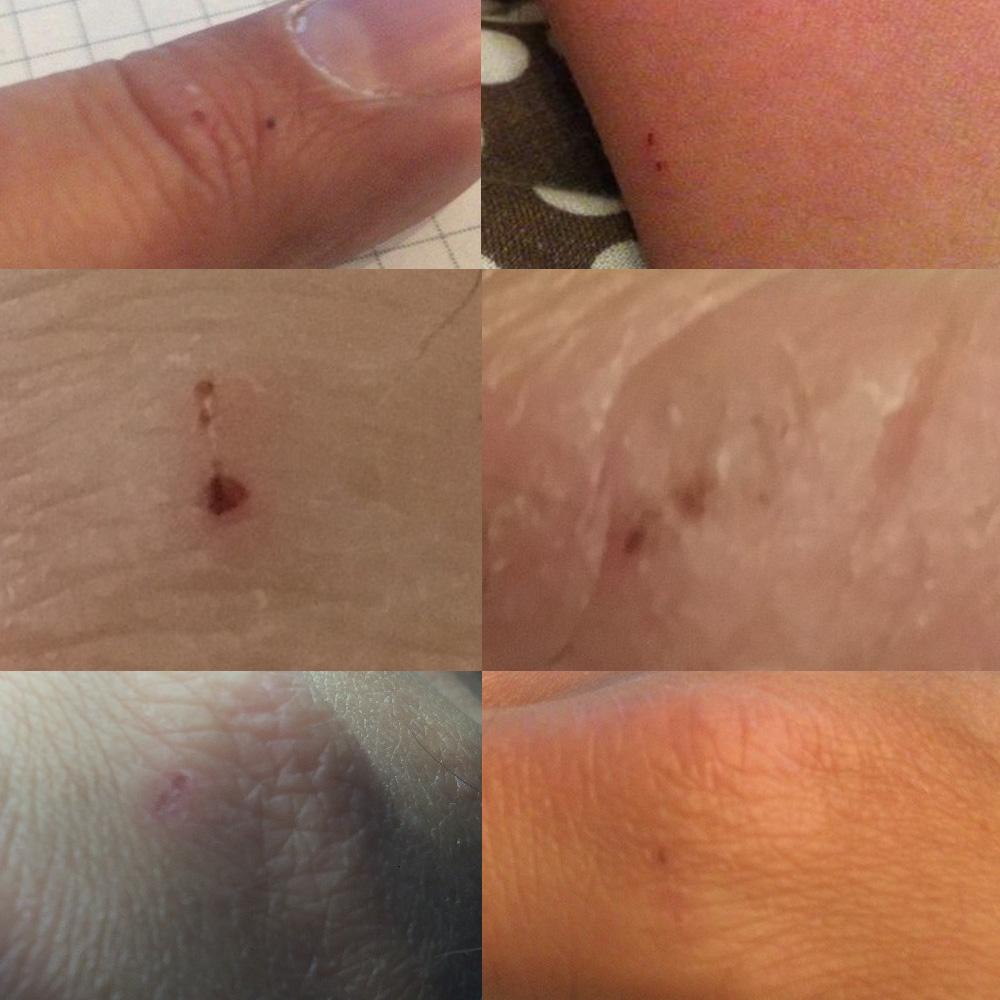 Конец года: вирусы, тесты и проколы на руках