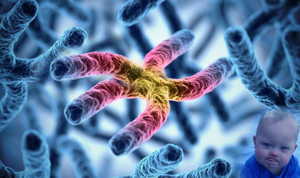 Синдром Дауна и трисомия 21 хромосомы. Влияние не рожденной души
