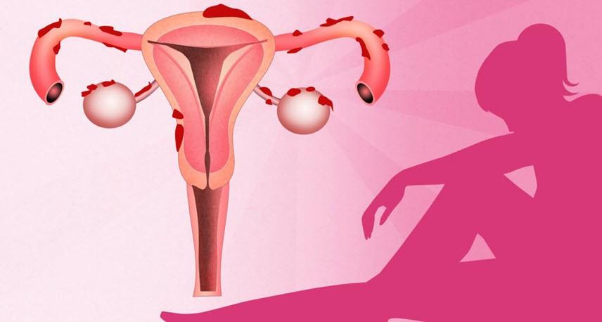 Эндометриоз и женская родовая карма. Исцеление